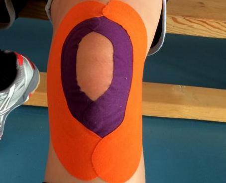 postranní vazy kolene
